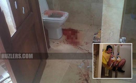 """Chàng traitên Oscar Reyes, 18 tuổi này có lẽ đã có cái chết """"lãng nhách"""" nhất. Oscar cố tạo ra một tư thế quái đản trong phòng vệ sinh nhưng do sơ suất, anh bị ngã xuống, đầu đập vào bồn cầu. Kết quả là anh bịchấn thương sọ não và chết sau đó do mất nhiều máu. (Ảnh: Internet)"""