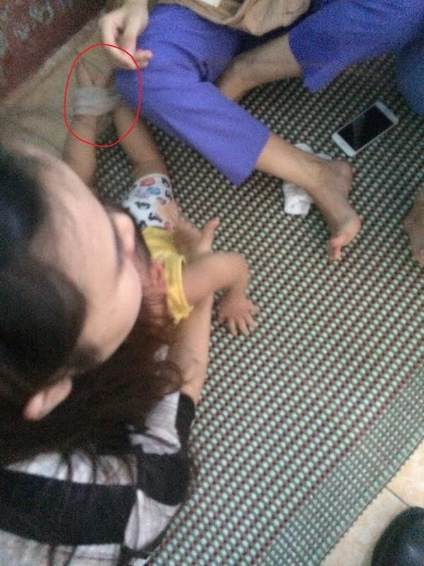 Chân của bé cũng bị cột chặt. Dây trói tay bé đã bị cô giáo phi tang bằng cách đè chân lên