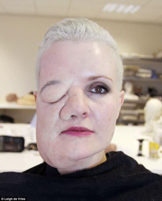Leigh de Vries hóa trang để thu thập phản ứng những người xung quanh về khuôn mặt dị dạng của mình.(Ảnh: Internet)