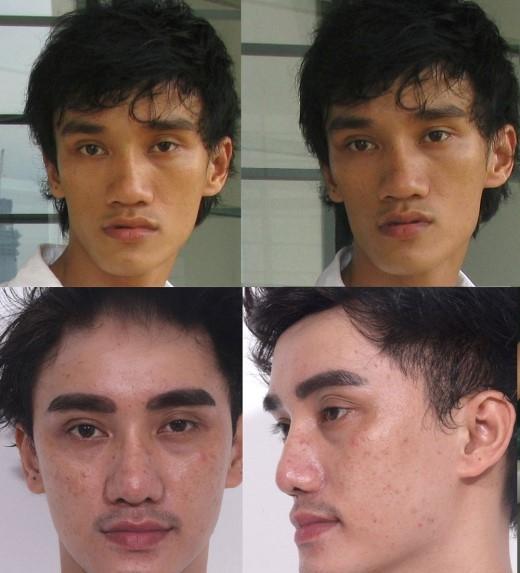 Hot boy Hà Nhuận Nam thời chưa từng phẫu thuật thẩm mỹ (trên) và đã phẫu thuật thẩm mỹ cách đây một năm rưỡi nhưng không hài lòng (dưới).