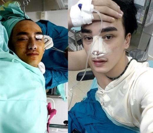 Hà Nhuận Nam đang trong quá trình phẫu thuật thẩm mỹ mới đây.