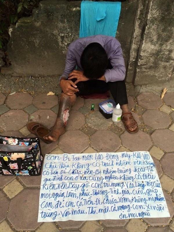 Chuyện nam thanh niên giả vờ chân bị hoại tử từng gây bức xúc cho nhiều người. Ảnh: FB
