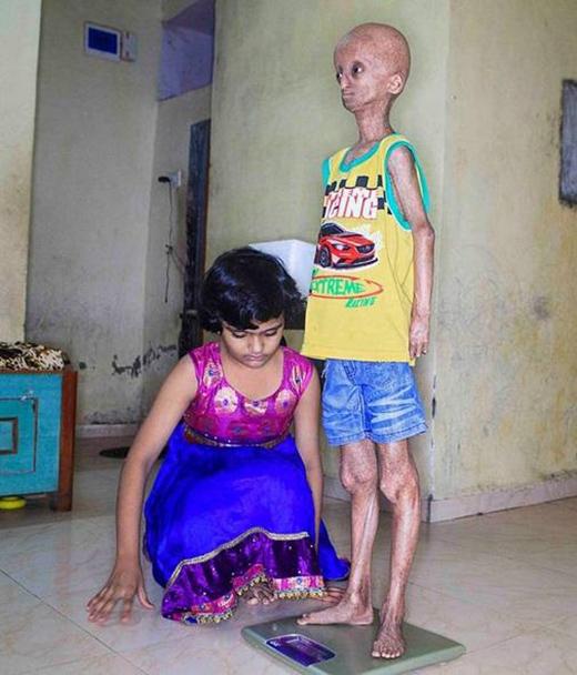 Xót thương ông lão 14 tuổi mang thân hình ốm yếu