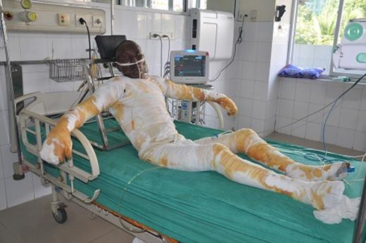 Anh Minh nằm phòng bên cạnh với 90% diện tích bỏng, bỏng sâu hô hấp.