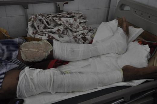 Toàn bộ chân, tay và cơ thể đều bị bỏng nặng.