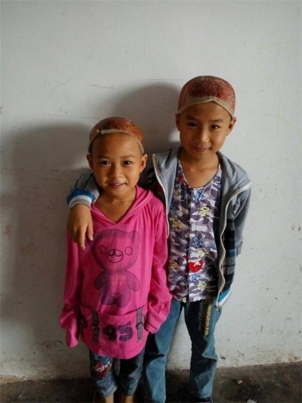 Cả hai bé đều đồng ý hiến da cho bố mà không hề do dự. (Nguồn: CCTV)