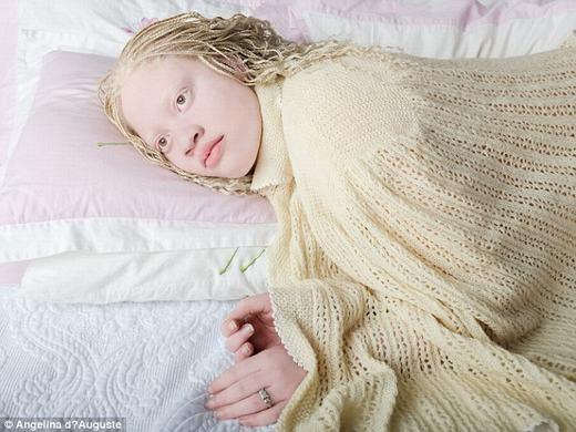 Theo Angelina, ban đầu cô chỉ tìm hiểu về những người bị bạch tạng bằng cách chụp vài tấm hình về nghiên cứu. (Ảnh:Angelina d'Auguste)