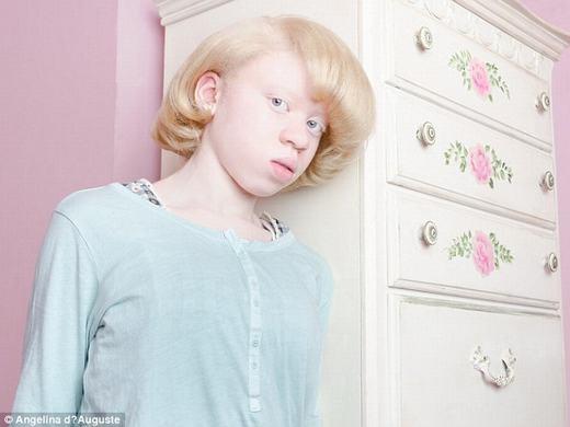 Từ cách thể hiện của Angelina, chúng ta có thể thấy người bị bạch tạng không khác người bình thường. (Ảnh:Angelina d'Auguste)