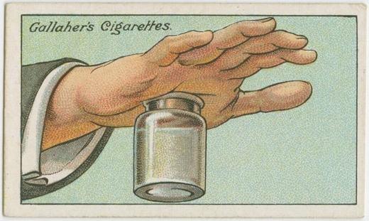Nếu bị dằm gỗ đâm vào tay, tadùng một bình miệng rộng, sau đó đổ nước nóng đầy gần tới miệng bình rồi ấn mạnh vùng tay bị tổn thương vào đó. Lúc này, hơi nước nóng sẽ làm nhiệm vụ hút dằm gỗ ra hết sức nhẹ nhàng. (Ảnh: Internet)