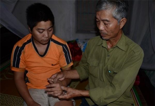 Đứa con thứ 2, Vũ Xuân Anh (33 tuổi), cũng bị phát bệnh tâm thần 4 năm nay, mỗi khi lên cơn thì anh lại chửi đánh bố mẹ, vợ con, đến nỗi người vợ phải đưa đứa con nhỏ bỏ về nhà ngoại.