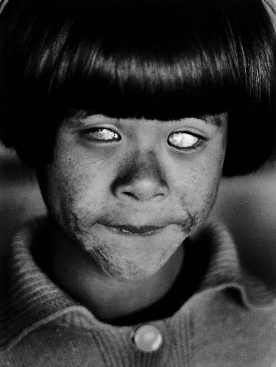 Đôi mắt của nạn nhân vụ nổ bom nguyên tử Hiroshima. Cô bé này là một người may mắn sống sót sau vụ Mỹ thả bom xuống thành phố Hiroshima, tuy nhiên cô bị bỏng nặng toàn thân và mất đi thị giác.