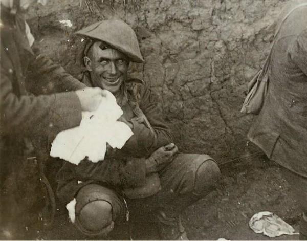 Đôi mắt điên dại- Người chiến binh này bị sốc do bom đạn nổ liên tiếp gây chấn thương thần kinh dẫn đến mất trí, mất ngủ, mất khả năng nói chuyện hay đi lại. Bức ảnh được chụp vào năm 1916 trong Chiến dịch Courcelette, Pháp.