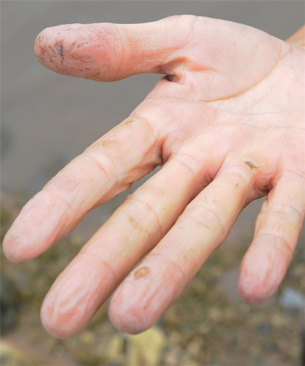 Bàn tay người thợ vớt rong nhăn nheo vì nước, xước xát khi đụng phải đá, sành dưới đáy bùn. Dầm người liên tục dưới đầm, nhiều chị em còn bị ngứa ngáy, bệnh phụ khoa, nhưng vì mưu sinh họ vẫn gắng gượng.