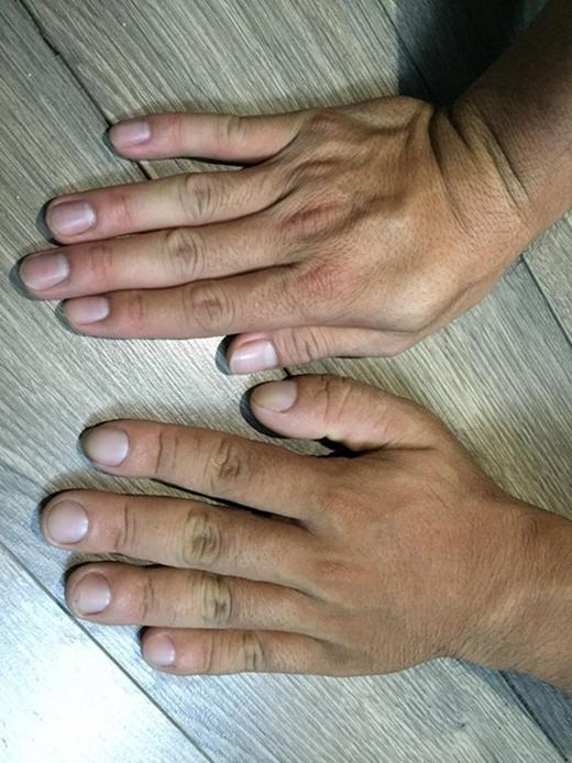 Ngoài khuôn mặt xuất hiện nếp nhăn, bàn tay, bàn chân của Nghĩa cũng to ra khác thường.