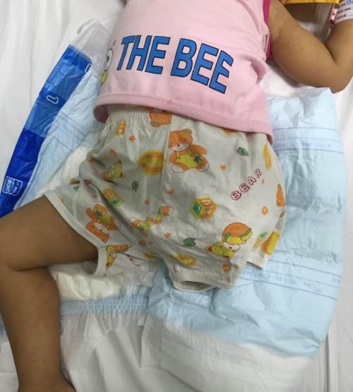 Bé gái 2 tuổi bị đứt lìa chân ở Hà Nội. Ảnh: DT
