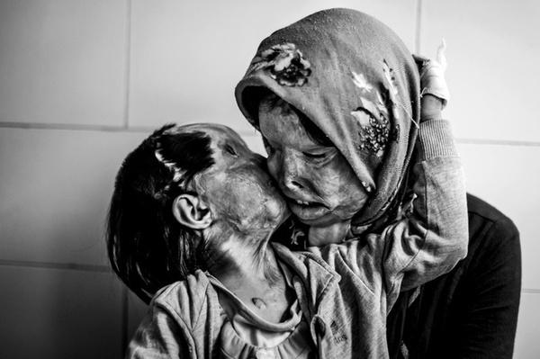 Sau vụ tạt axit do người chồng -người cha gây ra, cô con gái nhỏ đặt lên má người mẹ cái hôn an ủi đầy yêu thương.(Ảnh: Internet)