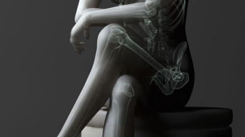 Vắt chéo chân có thể gây áp lực lên các dây thần kinh xương mác ở phía sau đầu gối, mang lại cảm giác cho đùi và bàn chân.