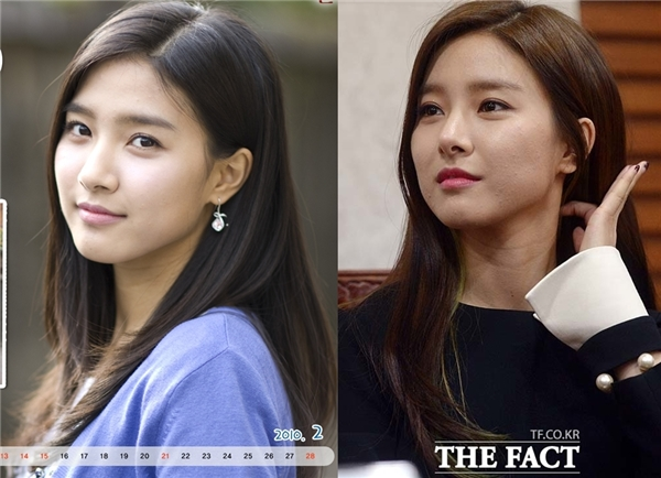 So với thuở mới vào nghề, chiếc mũi của Kim So Eun hiện nay cao và nhỏ nhắn hơn rất nhiều. Tuy nhiên, do nhiều lần trải qua phẫu thuật nên hình dạng mũi giờ đây đã bị biến dạng, trở nên nhọn hoắc bất thường.