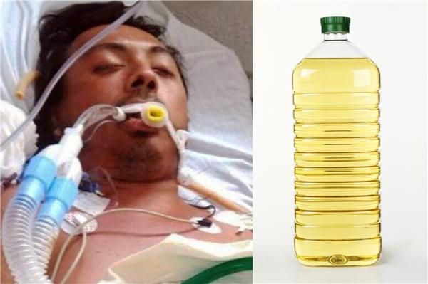 Sau 8 ngày tự bơm dầu ăn vào ngực, người đàn ông đã tử vong.(Ảnh: Internet)