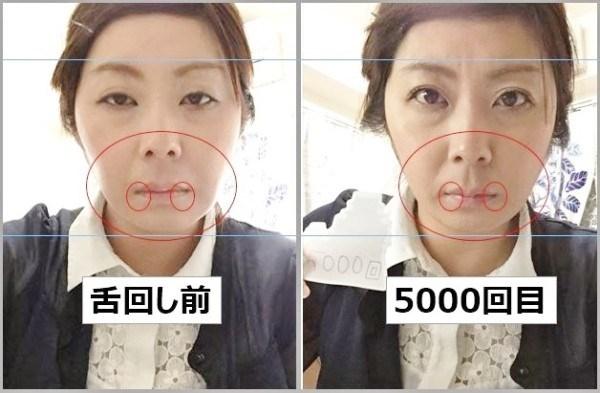 Cơ mặt được cho rằng có phần thon gọn hơn. (Ảnh: Internet)