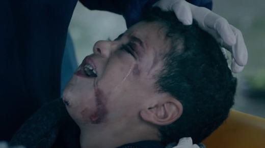 Cậu bé bị thương khá nặng ở nhiều nơi trên khuôn mặt. (Ảnh: BBC)