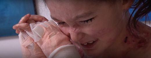 """Cảm phục nghị lực phi thường của cô bé """"chạm vào người là xịt máu"""""""