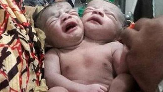Em bé 2 đầu sinh vào ngày đặc biệt 11/11. Ảnh: (Internet)