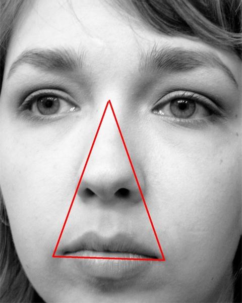 Mụn ở vùng tam giác tử thần (danger triangle of face) có thể gây liệt mặt, nhiễm trùng não, viêm màng não, thậm chí tử vong.