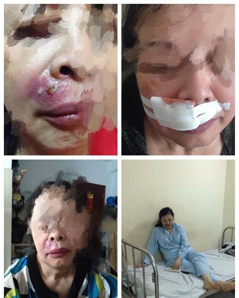 Người phụ nữ bị biến chứng khá nghiêm trọng, may mắn là cô đã được chữa trị kịp thời.