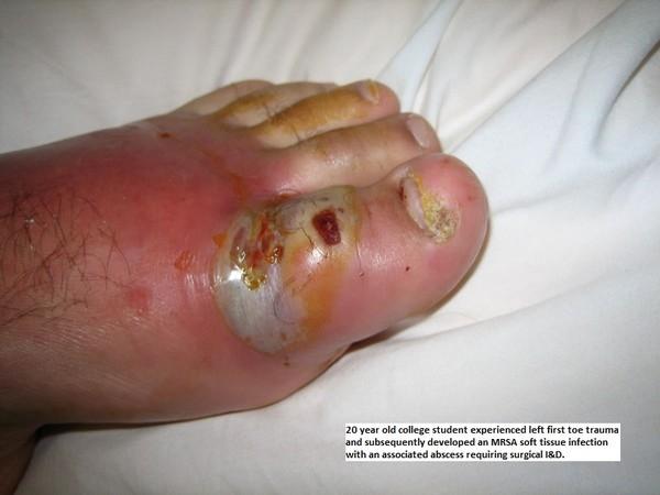 Người nhiễm MRSA