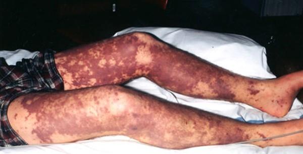 10 căn bệnh cực nguy hiểm chỉ trong 24 giờ