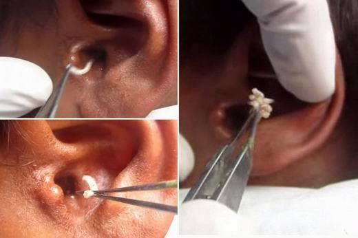 Một người đàn ông Trung Quốc đã phải nhập viện trong tình trạng đau dữ dội phần tai. Sau khi đến bệnh viện, mọi người đã dựng tóc gáy, thậm chí ói mửa tại chỗ khi bác sĩ lôi ra hàng trăm con dòi. Được biết, những con dòi đã ăn sâu vào tai và nếu chậm chút nữa, có lẽ nó đã ăn vào não. (Ảnh: Internet)