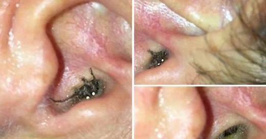 Katie Melua là một nữ ca sĩ 30 tuổi người Anh. Mới đây, cô đã chia sẻ trải nghiệm kinh hoàng bị một con nhện sống trong lỗ tai. Phải một tuần sau, cô mới phát hiện. Con nhện sau đó được các bác sĩ lôi ra ngoài. (Ảnh: Internet)