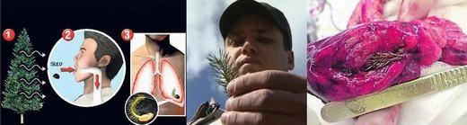 """Sự việc hi hữu không kém diễn ra tại Nga. Số là Artyom Sidorkin, 28 tuổi hít phải hạt giống thông, sau khi bay vào phổi đã mọc thành cây thông con. """"Vị khách không mời"""" này chỉ được phát hiện và bị """"tống khứ"""" ra ngoàisau khi Artyom cảm thấy ngực mình đau đớn và đến bệnh viện. (Ảnh: Internet)"""