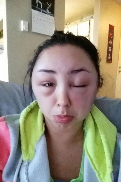 Cô gái biến dạng khuôn mặt vì điều hàng triệu người làm mỗi ngày
