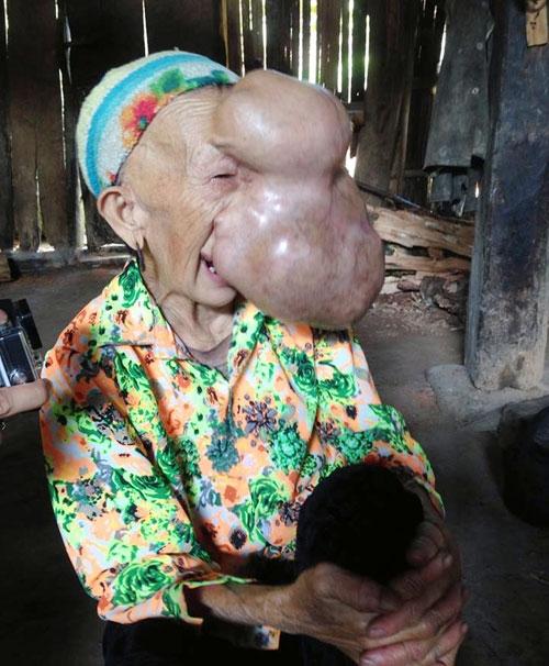 Bà Triệu Mùi Chài, 62 tuổi. Ảnh: Hoài Phương