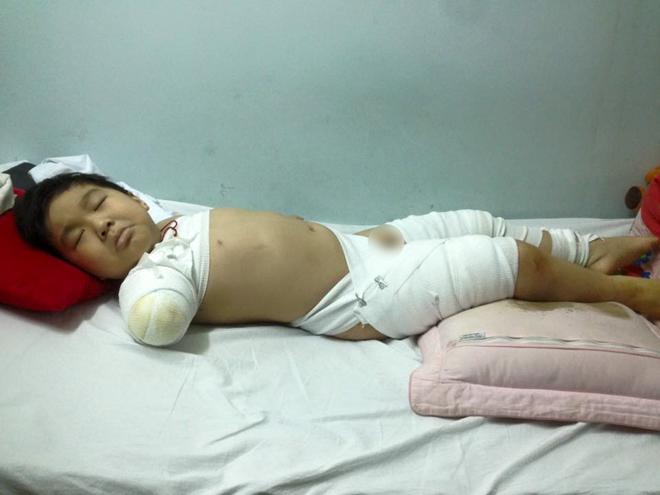 Đồng Hoàng Long (6 tuổi) tại viện điều trị. Ảnh: Đồng Nam Anh.