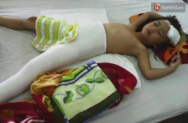 Bé Võ Thị Hồng Điệp đã có thể xuất viện, nhưng bé vẫn chưa biết rằng mẹ mình đã mất trong vụ tai nạn