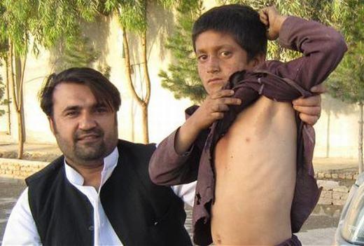 Nhờ vết bớt có hình bản đồ quốc gia Afghanistan, cậu bé Gran, 9 tuổi, sống tại thị trấn Lashkar Gah, tỉnh Helmand đã trở nên nổi tiếng khắp nước và thế giới. Được biết, gia đình cậu bé trước khi nổi tiếng khá nghèo, và Gran phải đi ăn xin. Từ sau khi vết bớt ở gần nách trái được công khai, cậu đã được các nhà hảo tâm giúp đỡ và hoàn cảnh đã bớt khó khăn hơn. (Ảnh: Internet)
