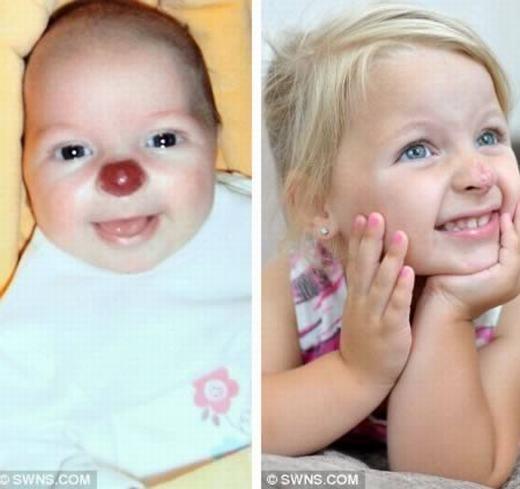 """Bé Connie Lloyd, 2 tuổi, được gọi là """"chú hề"""" bởi vết bớt đỏ trên mũi. Thực chất, đây là một khối u lành tính nhưng không thể chữa. Mới đây, gia đình bé đã quyết định phẫu thuật bất chấp rủi ro có thể gặp phải. (Ảnh: Internet)"""
