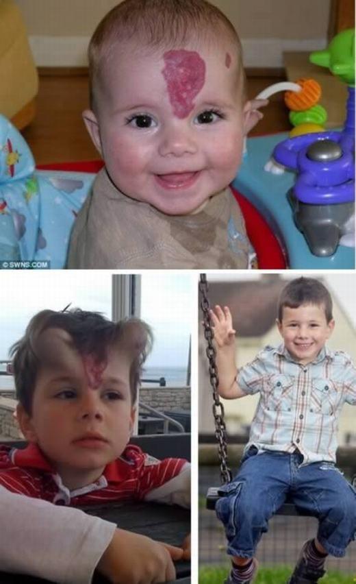 Còn đây là George Ashman, 5 tuổi, bị một vết bớt màu đỏ ngay giữa trán. Mẹ bé, chị Karen (33 tuổi) sợ con lớn lên sẽ bị chọc ghẹo nên đã đưa bé đến bệnh viện điều trị. Tại đây, các bác sĩ đã tiến hành phẫu thuật kéo da sang hai bên. Sau khi kéo, hai bên trán của bé bị biến chứng, tạo nên hình thù kì dị. Tuy nhiên, 4 tháng sau, chúng xẹp dần và hiện George không còn vết bớt đó nữa. (Ảnh: Internet)