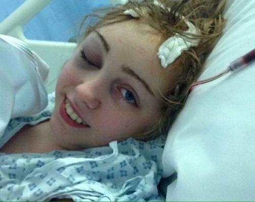 Mặc dù việc điều trị vô cùng mệt mỏi và đau đớn nhưng cô gái vẫn luôn lạc quan, đầy quyết tâm chống lại bệnh tật.
