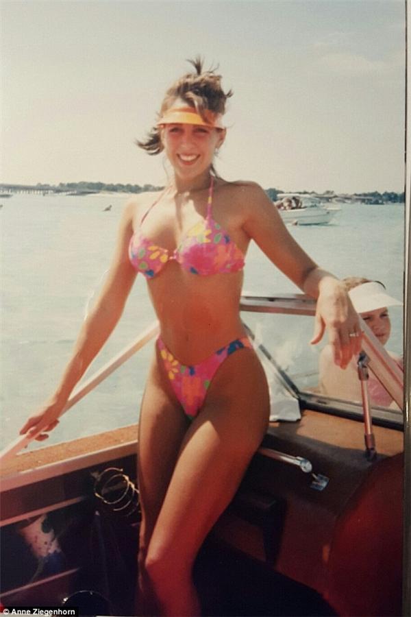 Anne sau thời điểm nâng ngực. (Ảnh: Internet)