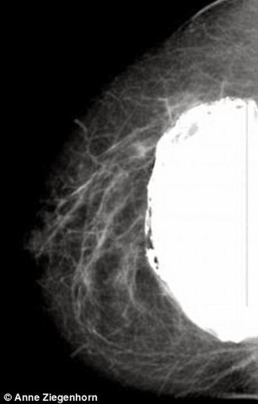 Ảnh chụp X-quang túi silicon đầy nấm mốc. (Ảnh: Anne Ziegenhorn)