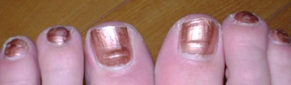 Màu móng tay tiết lộ gì về các bệnh tật của bạn?