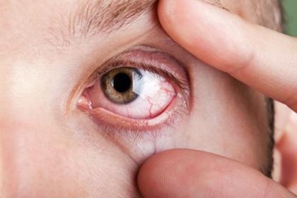 Cảnh báo bệnh nguy hiểm chết người qua đôi mắt