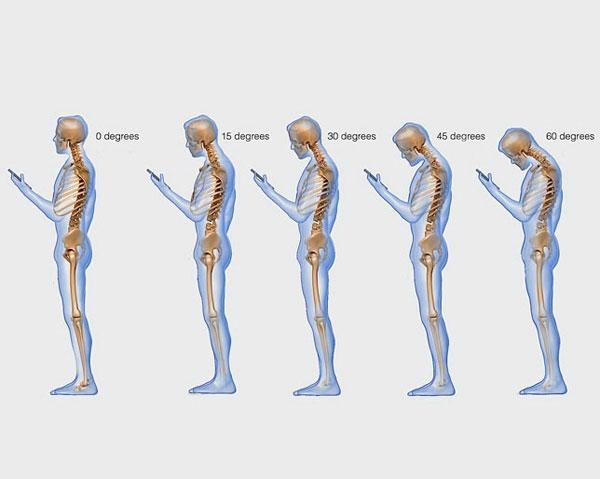 Nghiện nhắn tin bằng điện thoại gây hại nghiêm trọng đến cột sống