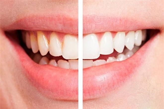 8 vấn đề răng miệng cực khó chịu và cách giải quyết!