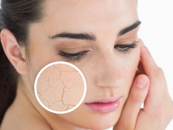 6 biến chứng làn da khô bạn cần chú ý