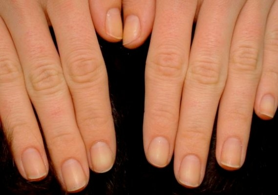 7 dấu hiệu quan trọng cho thấy gan đang